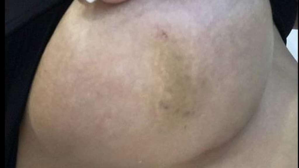 Blaue Adern Auf Der Brust